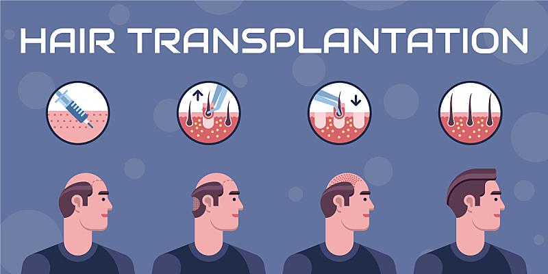 头发,问题,分离着色,信息图表,健康保健,人,结论,踏步,生长,脱发