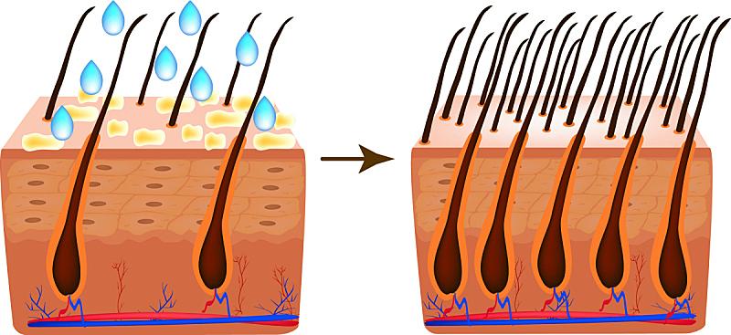 头发,维生素,干的,健康保健,分泌细胞,皮炎,皮脂,脂漏性皮肤炎,美容,脱发